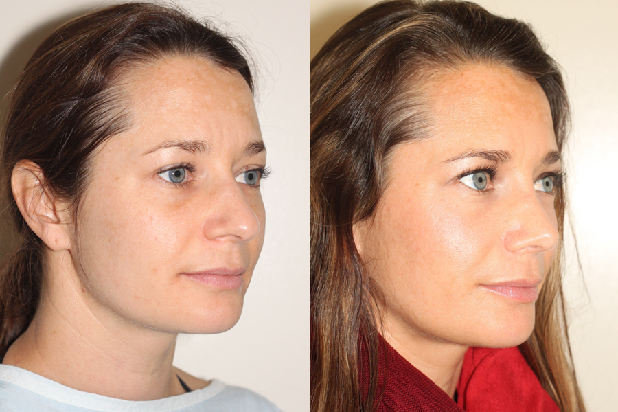 right oblique view of before and after open rhinoplasty in vancouver
