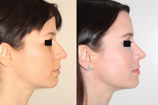 DK RL before after rhinoplasty