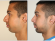 Before and after images of young male who has undergone rhinoplasty and Chin implant surgery.