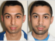 Before and After Rhinoplasty and Chin Augmentation*