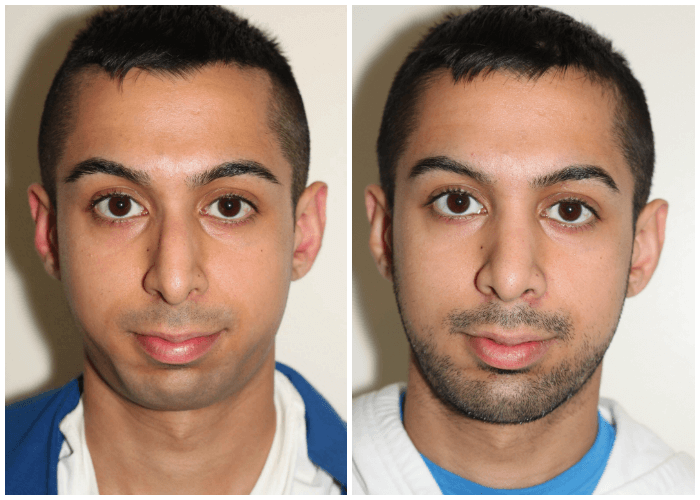 rhinoplasty with balancing chin augmentation