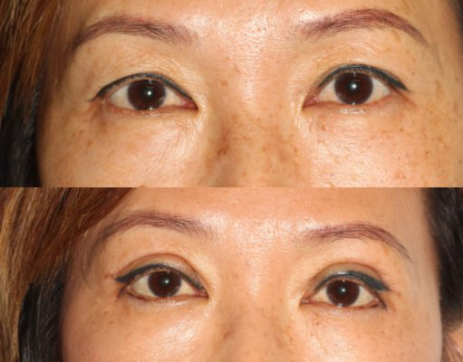 Before and After Asian Eyelid Surgery