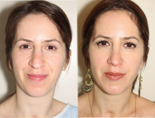 Before and After Open Rhinoplasty