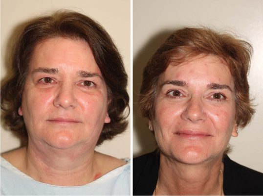 Before and After image of middle-aged female who has undergone Upper Eyelid, Browlift and Facelift.