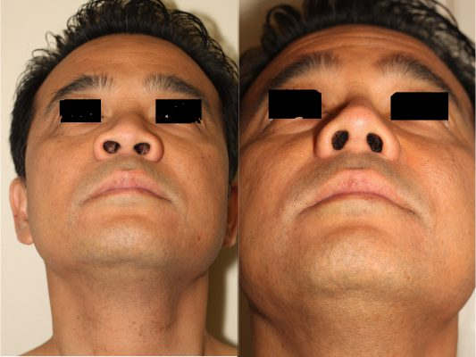 Before and after images of Asian plastic surgery on a male who has undergone an Alar Base Narrowing Open Rhinoplasty.