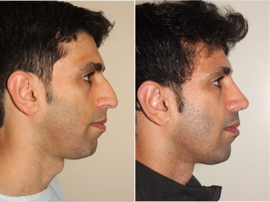 Male Before and After Rhinoplasty