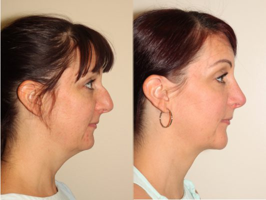 Before and after images of a young female who has undergone chin implant surgery and neck liposuction.