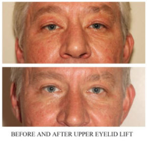Eyelid Surgery Before and After Image