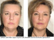 Before and After Upper Eyelid Lift, Browlift and Face/Neck Liposuction