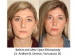 Before and After Open Rhinoplasty Surgery - Front View