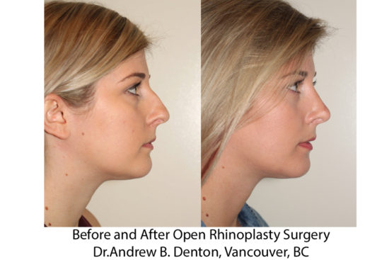 Before and After Open Rhinoplasty - Right Lateral View