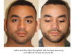 Before and After Open Rhinoplasty with Alar Base Narrowing - Dr. Andrew B. Denton, Vancouver, BC