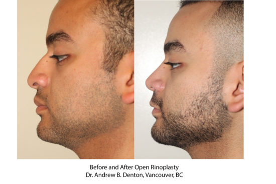 Before and After Open Rhinoplasty - Dr. Andrew B. Denton, Vancouver, BC