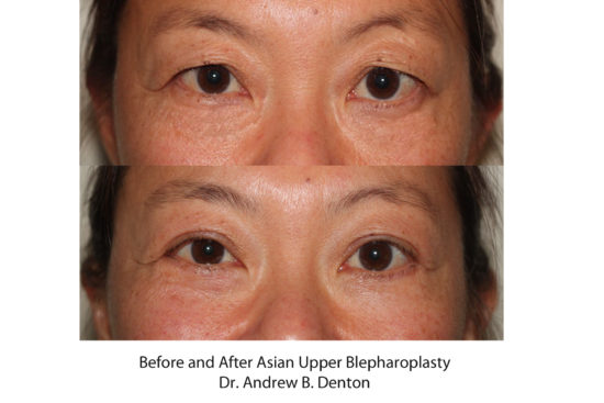 Before and after image of Asian plastic surgery on a female who has undergone Upper Eyelid Lift cosmetic plastic surgery.