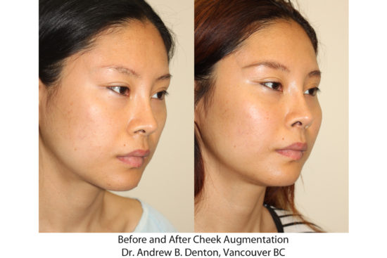 Before and after images of a young Asian female who has undergone cheek implant surgery.