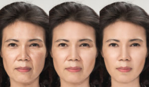 Surgical Facelift Before & After